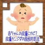 赤ちゃんの皮膚にカビ?おむつかぶれと皮膚カンジダの原因対処法