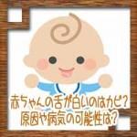 赤ちゃんの舌が白いのはカビ?原因や病気の可能性は?
