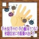 手水虫(手カビ・手白癬)はうつる?初期症状に市販薬の治し方