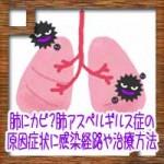 肺にカビ?肺アスペルギルス症の原因症状に感染経路や治療方法
